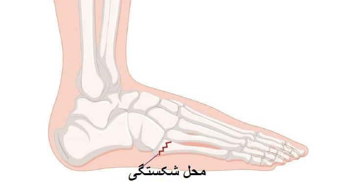 آیا شکستگی کف پا انواع مختلفی دارد؟