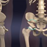 استئوتومی لگن کاربرد و مراحل انواع عمل جراحی استئوتومی لگن
