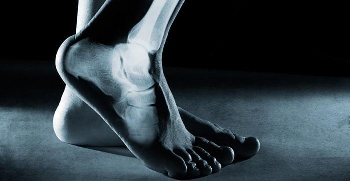 اشعه ایکس آزمایشهای تصویربرداری، به تایید تشخیص شکستگی کالکانئوس