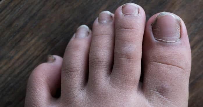 انواع بد شکلی ناخن پا