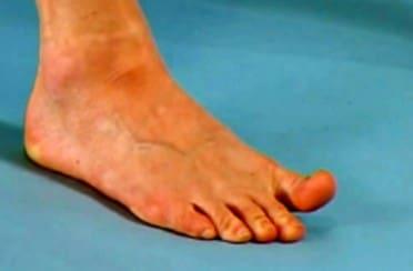 تمرین بلند کردن انگشت شست و نگه داشتن آن برای درمان درد کف پا