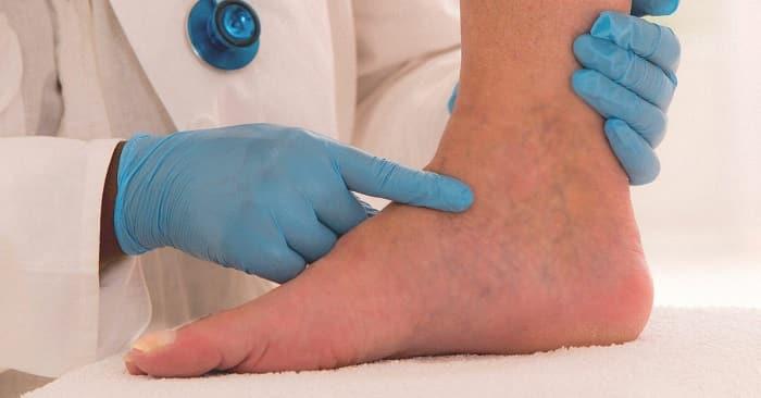 برای ورم پا به چه پزشکی مراجعه کنیم؟ (دکتر پا یا پودیاتریست)