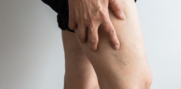 استفاده از جوراب واریس برای درمان ترومبوز سیاهرگی عمقی