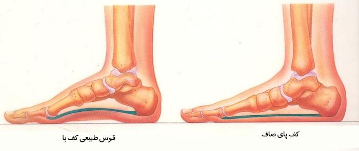 تشخیص صافی کف پا