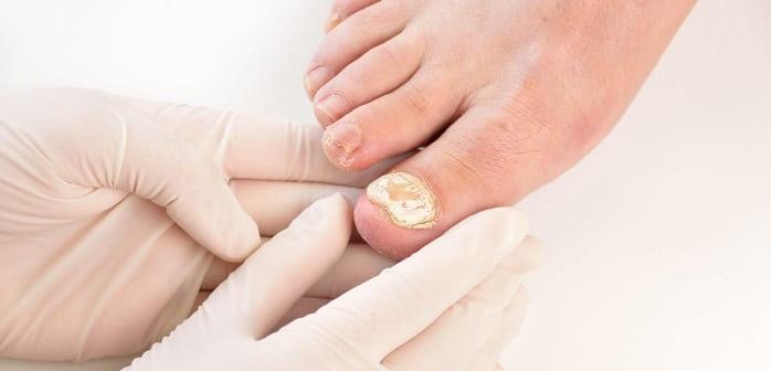 تشخیص قارچ ناخن بر اساس علائم و نمونه برداری
