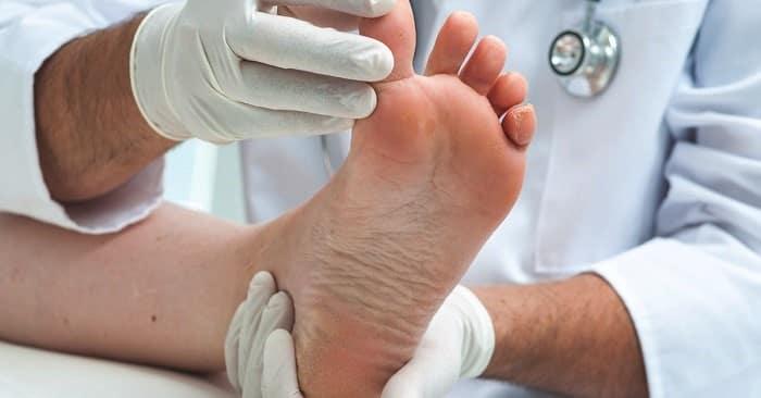 دررفتگی پا کاهش درد و ورم دررفتگی قوزک، انگشت، مچ و کف پا
