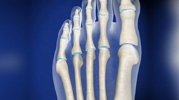 درمان بونیونت یا برجستگی کنار انگشت کوچک پا با اسپلینت و فیزیوتراپی