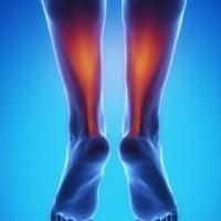 درمان درد آشیل پا