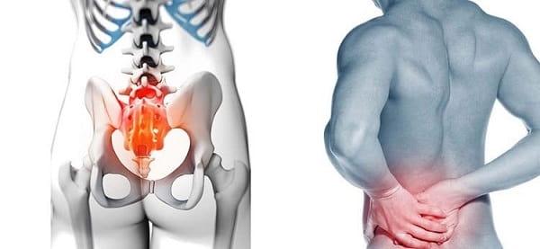درمان درد ساکروایلیاک (انتهای ستون فقرات کمر) با فیزیوتراپی و ورزش