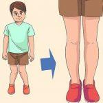 درمان زانوی ضربدری کودکان و بزرگسالان