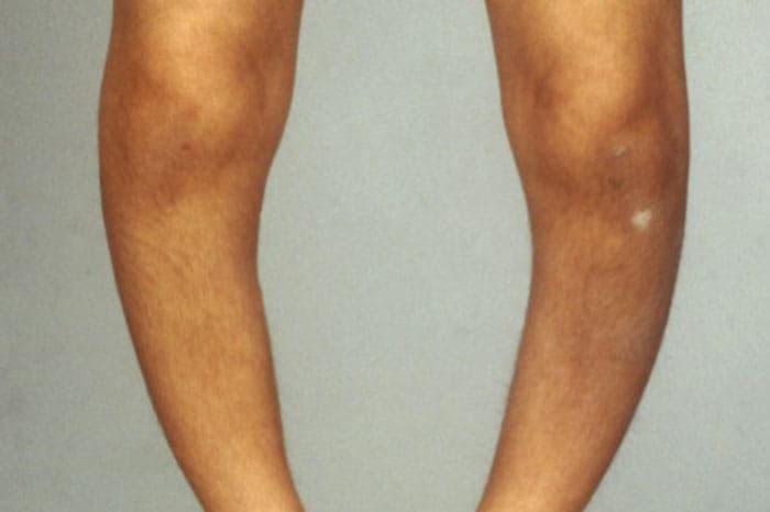 درمان زانو و پای پرانتزی
