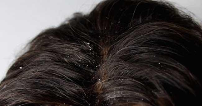 درمان-شوره-سر-(1)