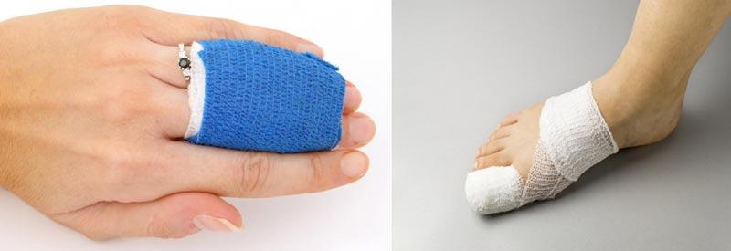 درمان شکستگی انگشتان دست و پا با فیزیوتراپی و ورزش