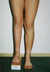 درمان کوتاهی پا