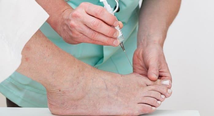 در طول درمان تزریق به کف پا چه اتفاقی میافتد