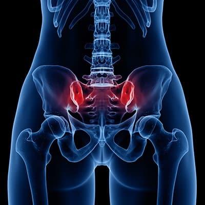 دلایل درد مفصل ساکروایلیاک