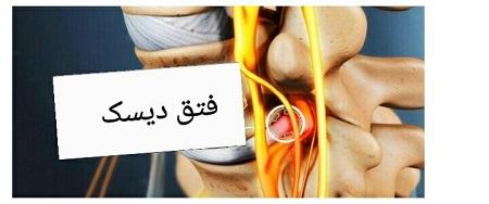 سایر علل پا درد