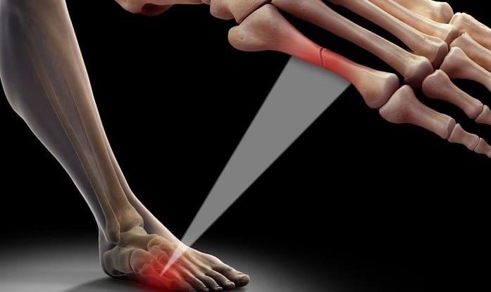 شکستگی استخوان کف پا (متاتارس) بدون جراحی قابل درمان است؟