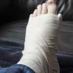 شکستگی استرسی (شکستگی ناکامل و بصورت ترک کوچک در استخوان پا)