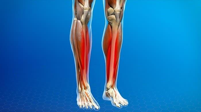 شین اسپلینت (درد جلوی ساق پا) نشانه چیست و چگونه درمان میشود؟