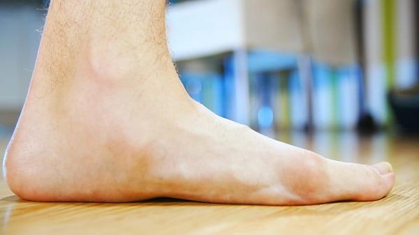 صافی کف پا از علت درد پا