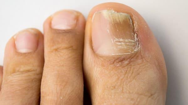 عفونت قارچی ناخن از علت درد پا
