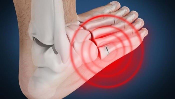 علائم شکستگی استخوان کف پا چیست؟