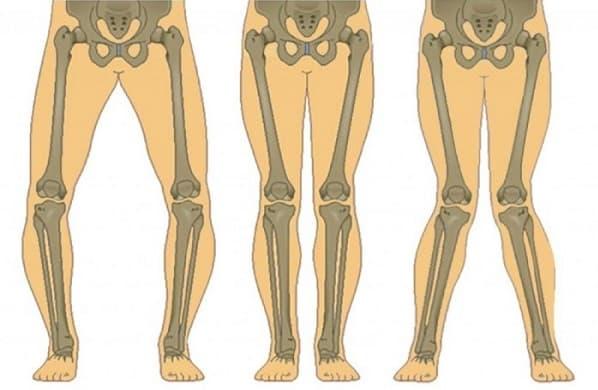 علائم و نشانههای پای پرانتزی