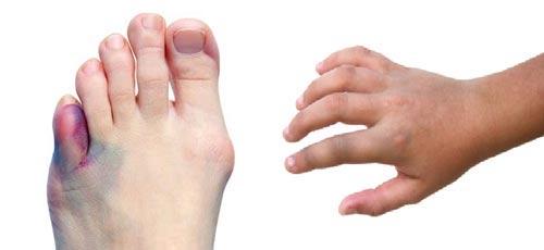 ضربدیدگی بدن (درمان خانگی و سنتی)