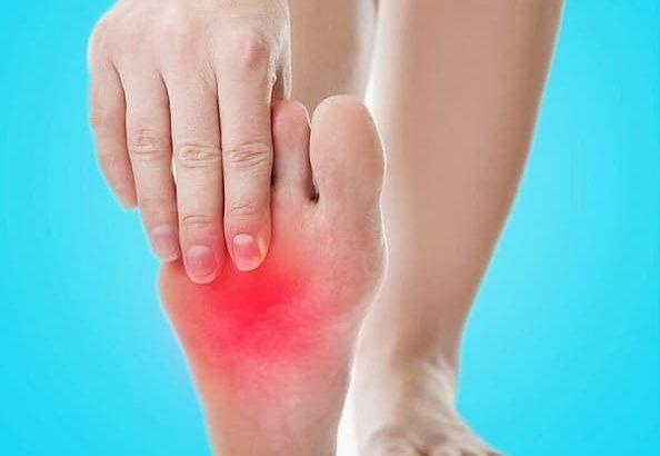 علت داغ شدن کف پا و درمان آن با دارو، تغذیه و تغییرسبک زندگی-min