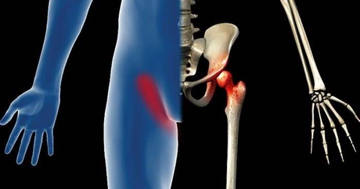 علت درد کشاله ران در زنان و مردان چیست؟ درمان درد کشاله ران