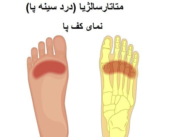 متاتارسالژیا از علت درد پا