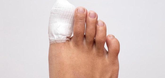 مراقبت¬های بعد از جراحی ناخن فرو رفته در گوشت پا