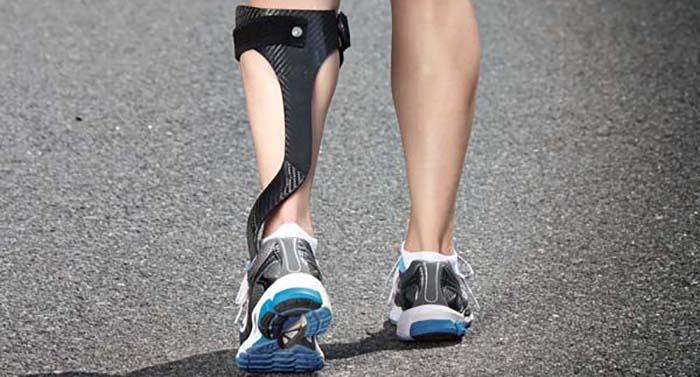 نحوه استفاده از اسپلینت افتادگی مچ پا