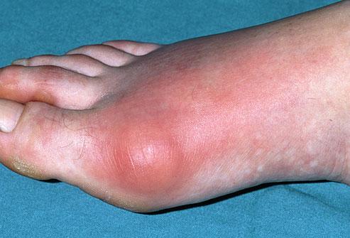 نشانههای نقرس پا (پاشنه، مچ و شست)
