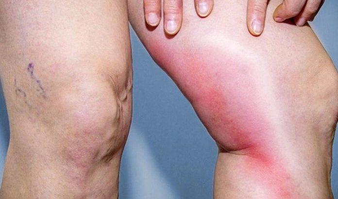 پیشگیری از آمبولی پا(لخته شدن خون در پا) در سفر و دوران بارداری