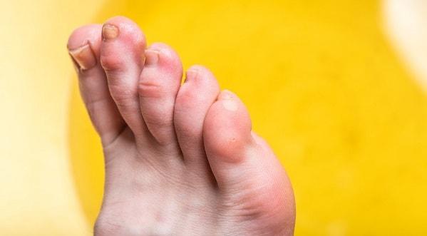 پینه پا از علت درد پا