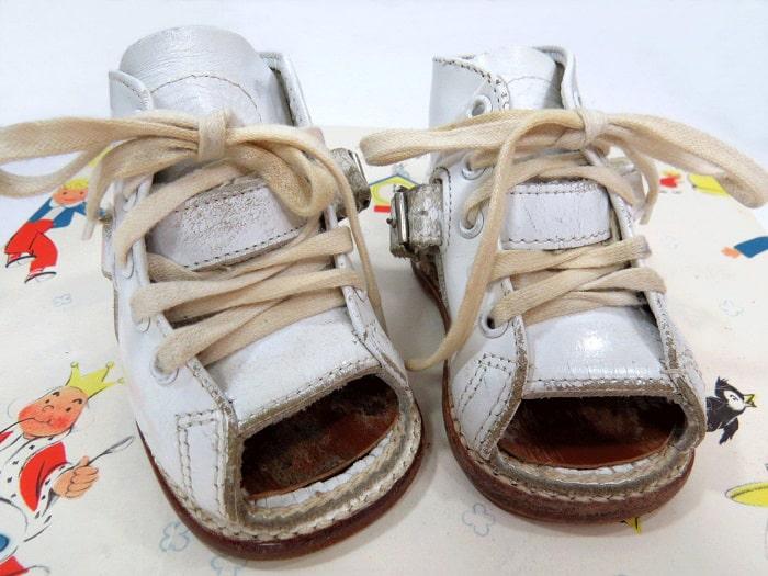 کفش طبی برای کودک